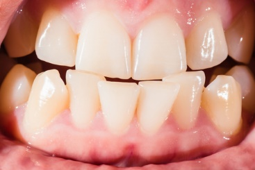 Malocclusion – Dental Problem