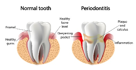 Periodontitis – Dental Problem